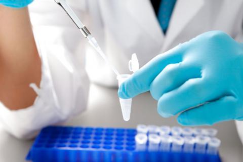 Диагностика инфекций, передающихся половым путем, ЗППП, ИППП, гинеколог в Чебоксарах, гинекология в Чебоксарах