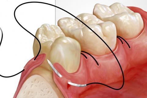 стоматолог-хирург, стоматолог-хирург в Чебоксарах, пластика мягких тканей