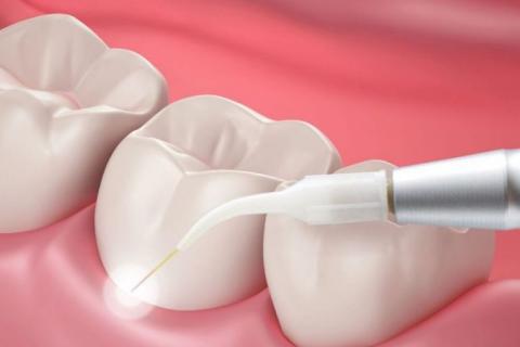 стоматолог-хирург, стоматолог-хирург в Чебоксарах, удаление зубов, удаление зуба в Чебоксарах