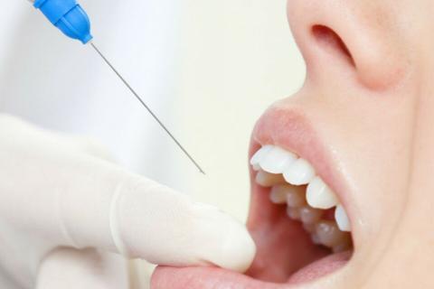 стоматолог-терапевт, стоматолог в Чебоксарах, плазмолифтинг, лечение зубов Чебоксары