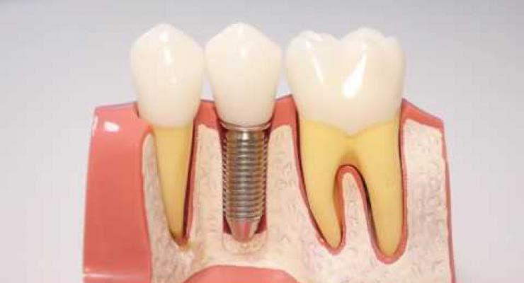 Embedded thumbnail for Зубные импланты (Хочу быть здоровым!)