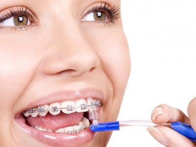 стоматология, детская стоматология, брекеты, ортодонт, кривые зубы, исправление кривых зубов, лечение, поставить брекеты