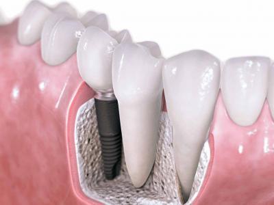 стоматолог-хирург, стоматолог-хирург в Чебоксарах, костная пластика