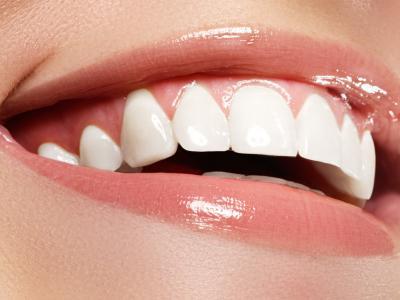 стоматология, стоматолог, отбеливание, тёмные зубы, отбелить зубы, лечение зубов