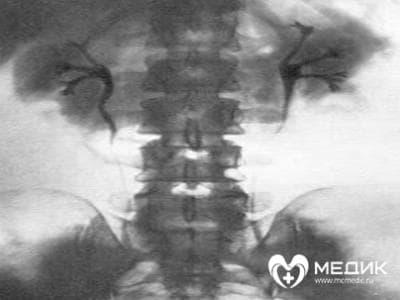 рентген, рентгенография, сделать ренгтен, ренгтен в Чебоксарах